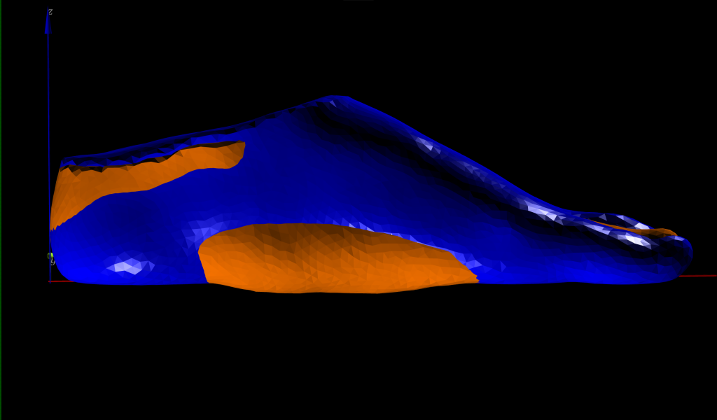3D foot scan analysis